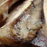 bone marrow 23